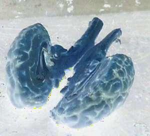 a split brain